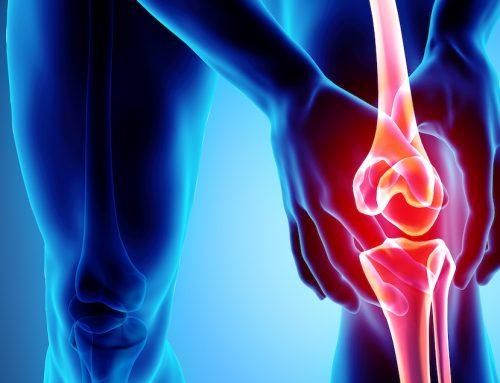 HA food supplements for osteoarthritis